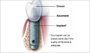 Immediate Implantation