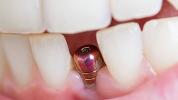 Dental Implants sm