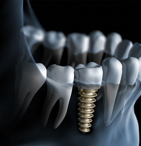 Dental Implants with 3D Imaging